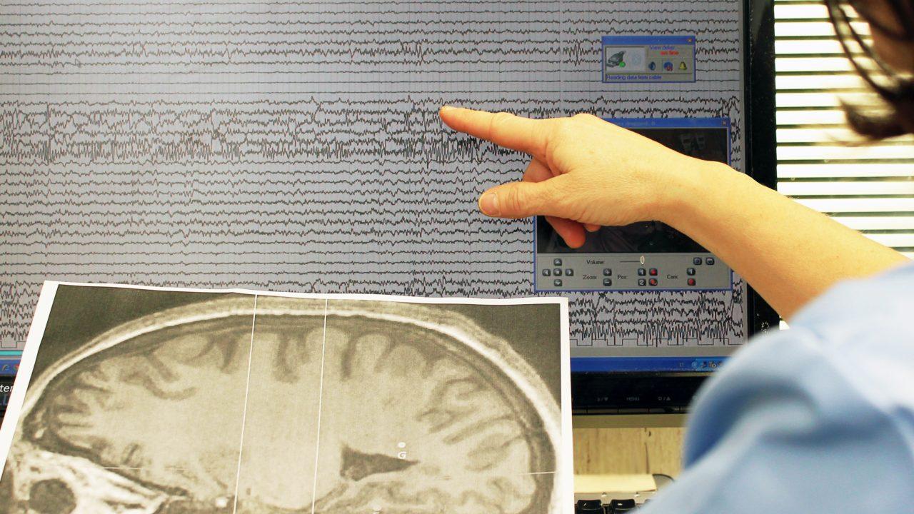 Malattie neurodegenerative: un nuovo farmaco blocca la progressione della CLN2